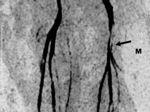 Магнитно-резонансная ангиография сосудов ног липосаркома