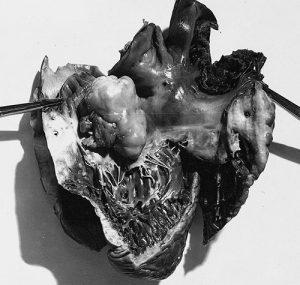 липосаркома сердца