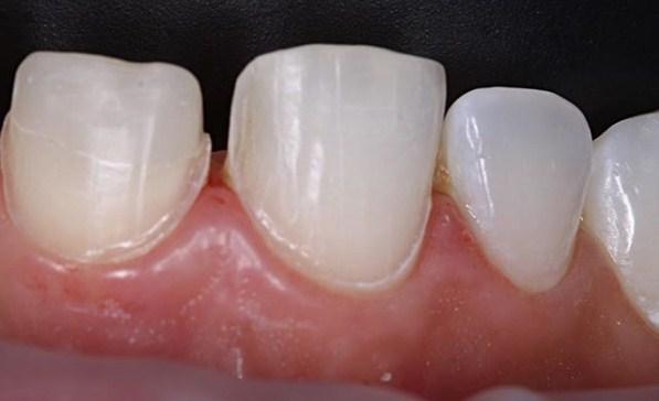 болят зубы после обточки под виниры