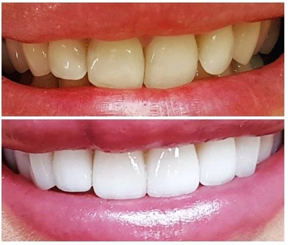 болят зубы сразу после установки виниров