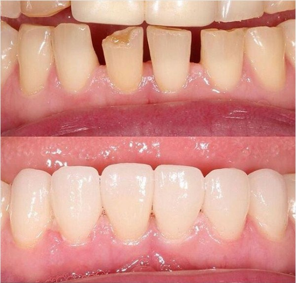 сколько болят зубы после установки виниров